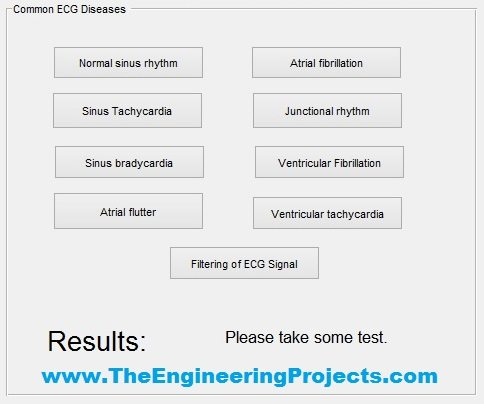 ecg simulator, ecg simulation, ecg features extraction, ecg simulation using matlab, ecg simulation in matlab