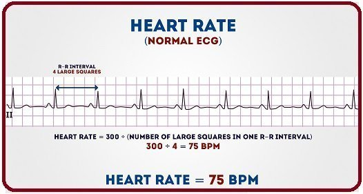 Introduction to ECG, basics of ECG, ECG basics, what is ECG, disease detected through ECG, diseases detected via ECG, when to do ECG, ECG introduction, ECG, know about ECG, how to know about ECG