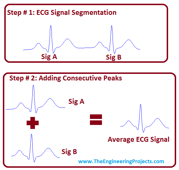 ECG Averaging in MATLAB, ECG Average,average ecg,ecg averaging
