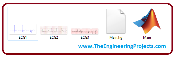 ECG Digitization in MATLAB,ECG Digitization,ECG Digitization MATLAB, digitization of ecg signals